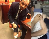 AK Partili vekil raporla ısırıldığını ispatladı