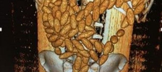 Midesinden 102 kapsül esrar çıktı