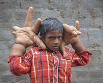 Elleri kafası kadar!