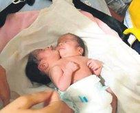 Siyam ikizleri Türkiye'de